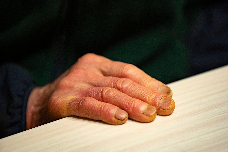 鍋割山の歴史を刻んできた手。実は海外遠征時に、凍傷で足の指を七本失っている。